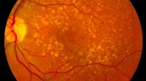Biology Seminar: The genetics and cell biology of age-related macular degeneration